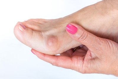Fixing a Recurrent Bunion in Sugar Land